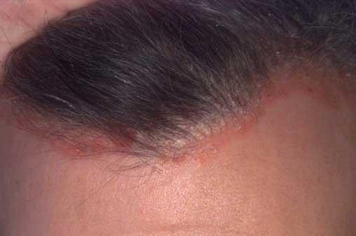 fejbőr pikkelysömör kezelései